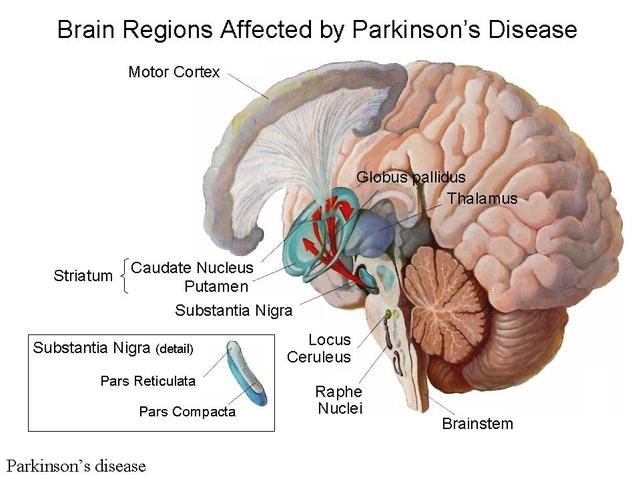 research paper on parkinsons disease