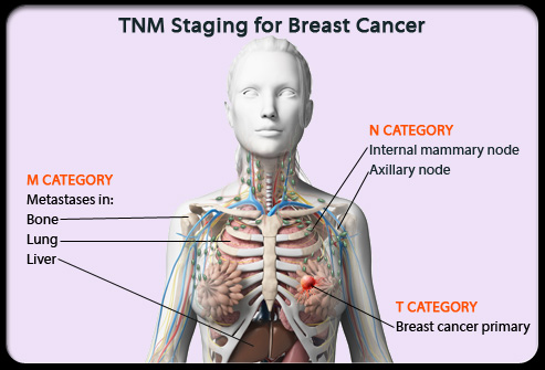 How to write a paper on breast cancer